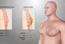 What Is The Best Treatment for Gynecomastia?